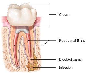 diagram of endodontic retreatment