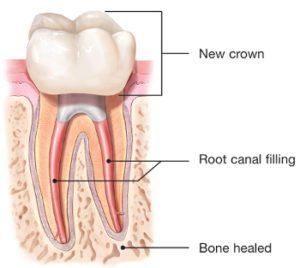 diagram of endodontic retreatment