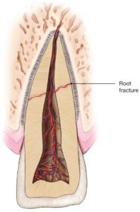 diagram of a root fracture