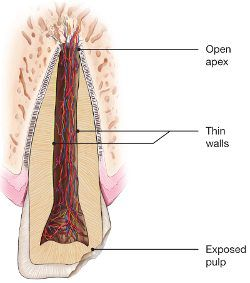 diagram of a chipped tooth