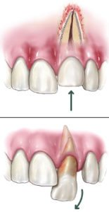 diagram of a dislodged tooth