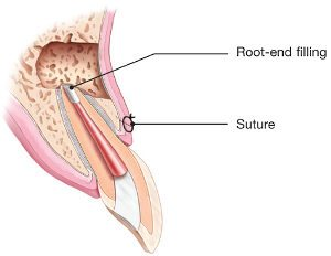 diagram of apicoectomy